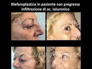 Blefaroplastica - Dott. Luca Maione