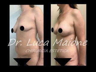 Addominoplastica - Dott. Luca Maione
