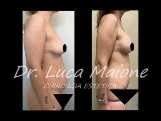 Mastoplastica additiva - Dott. Luca Maione
