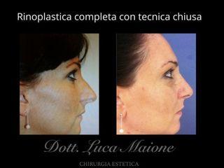 Rinoplastica - Dott. Luca Maione