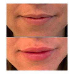 Filler labbra - Chirurgia Plastica Dr. Riccardo Martinelli