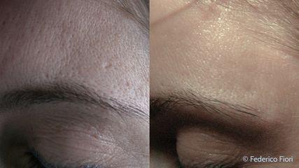 Laser prima e dopo