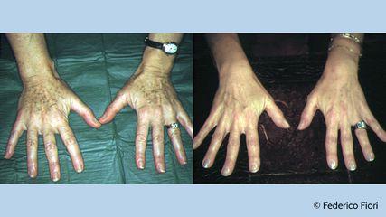 Mani prima e dopo