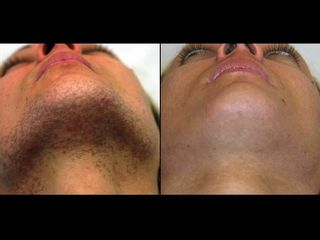 Epilazione laser permanente viso