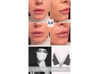 Filler labbra-769840