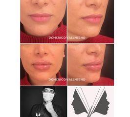 Filler labbra - Dott. Domenico Valente