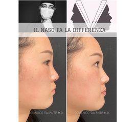 Rinoplastica - Dott. Domenico Valente