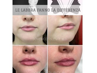 Filler labbra - 793825