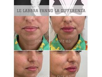 Filler labbra - 793827