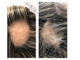 Carbossiterapia prima e dopo