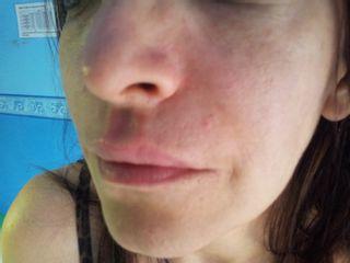 Filler e tossina botulinica