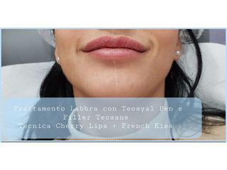Trattamento labbra