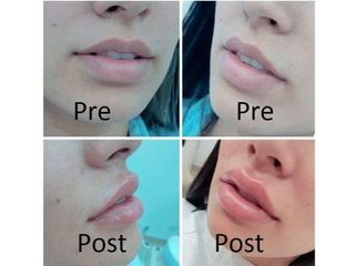 Filler labbra - Dott. Maurizio Santoro