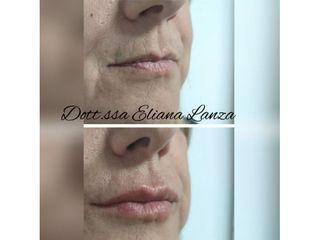 Filler labbra - Dott.ssa Eliana Lanza