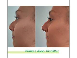 Rinofiller - Dott.ssa Eliana Lanza