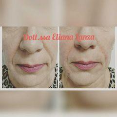 Filler - Dott.ssa Eliana Lanza
