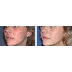 Dermabrasione prima e dopo