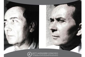 Profilo prima e dopo