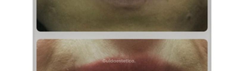 Ricostruzione volumetrica delle labbra