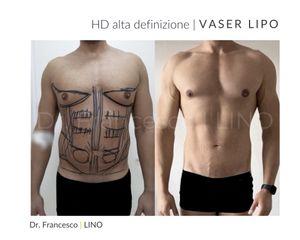 Liposuzione - Dott. Francesco Lino