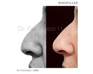 Rinofiller - Dott. Francesco Lino