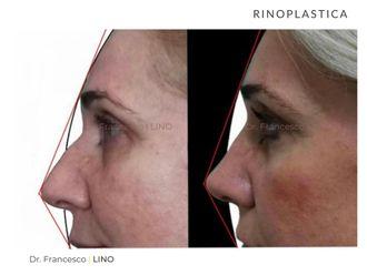 Rinoplastica-773155