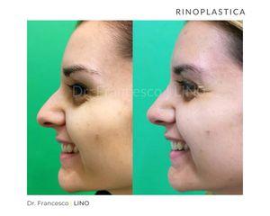 Rinoplastica - Dott. Francesco Lino
