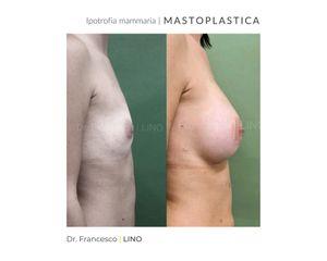 Mastoplastica additiva - Dott. Francesco Lino