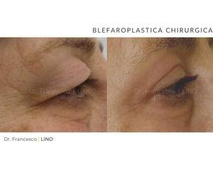 Blefaroplastica - Dott. Francesco Lino