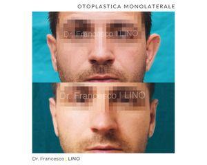 Otoplastica - Dott. Francesco Lino