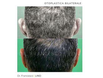 Otoplastica-773218