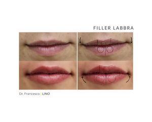 Filler labbra - Dott. Francesco Lino