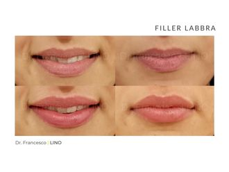 Filler labbra-773813