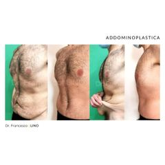 Addominoplastica - Dott. Francesco Lino