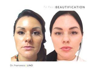 Ringiovanimento viso - Dott. Francesco Lino