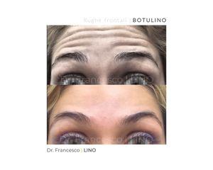 Botulino - Dott. Francesco Lino