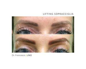 Lifting viso - Dott. Francesco Lino