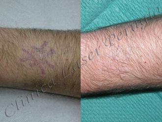 Laserterapia-747232