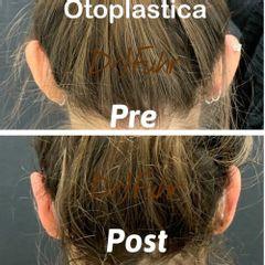 Otoplastica - Dott.ssa Jasmin Fuhr