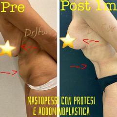 Mastoplastica additiva e Addominoplastica - Dott.ssa Jasmin Fuhr