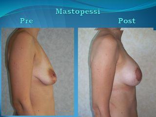 Mastopessi Additiva prima e dopo