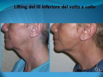 Lifting viso-750573