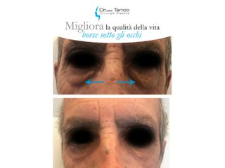 Occhiaie prima e dopo