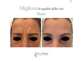 Botulino-764460