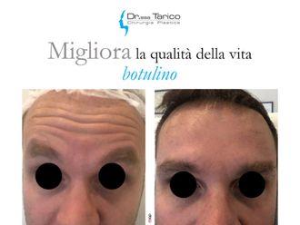 Botulino-764461