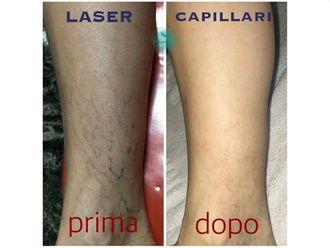 Capillari-767567