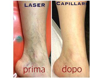 Capillari-767568