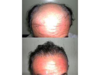 Trapianto capelli pre e post