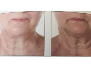 Lifting collo - Med Medicina e Chirurgia Estetica