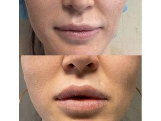 Filler labbra - Med Medicina e Chirurgia Estetica